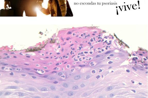 FÁRMACOS BIOLÓGICOS FRENTE A PSORIASIS