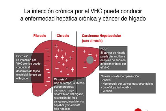 LO QUE HAY QUE SABER DE LA HEPATITIS C